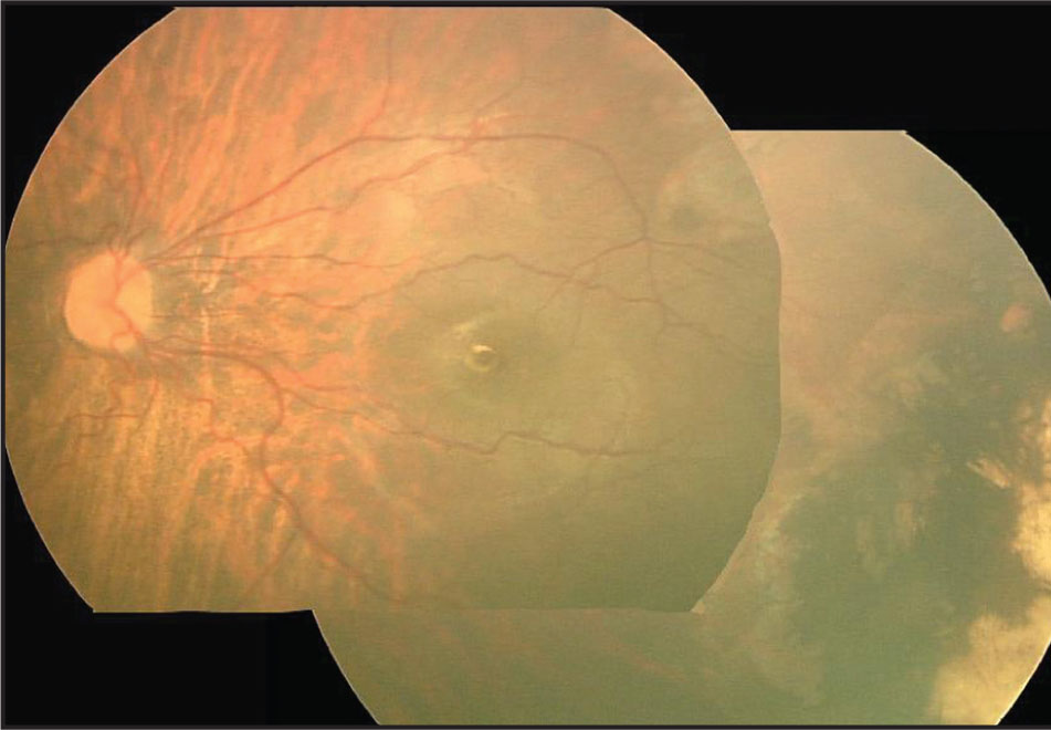Case 1. Photograph of the Left Eye 18 Months After Vitrectomy Shows that the Retina is Reattached and there are Laser Burn Scars at the Temporal Avascular Area.