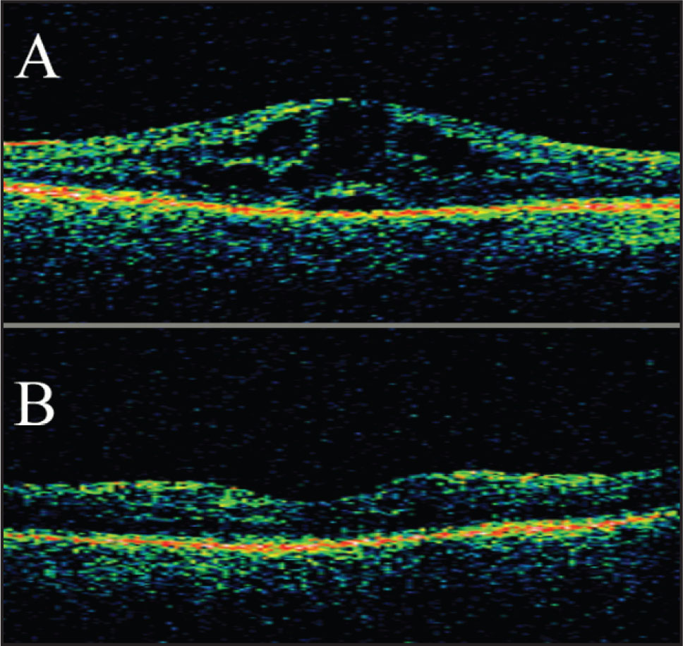 Optical Coherence Tomography Images of the Right Macula (A) Before and (B) 7 Months Following Aspiration of the Anterior Segment Ointment.