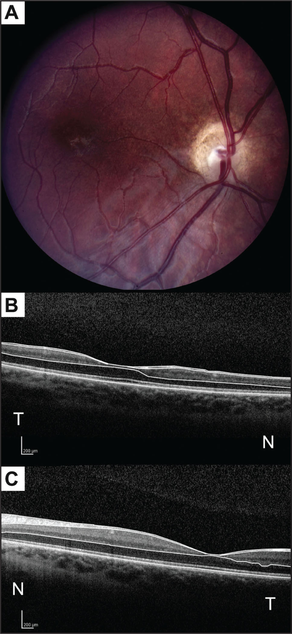 Fundus Photograph of the Right Eye (A) and Horizontal Optical Coherence Tomography (OCT) Scan Through the Fovea of the Right Eye (B) and the Left Eye (C). The Photograph Depicts Optic Nerve Head Hypoplasia and Pallor, a Double-Ring Sign, and Pigmentary Changes in the Central Macula. Examination of the Right Eye with Spectral-Domain OCT (SD-OCT) (B) Shows a Difference in Retinal Nerve Fiber Layer and a Difference in All Retinal Layers in the Central Macula, Most Noticeably in the Inner Layers, but also Affecting the Outer Layers when Compared to SD-OCT of the Left Eye (C). Manual Segmentation Lines (B and C) Delineate the Inner Limiting Membrane, Posterior Border of the Nerve Fiber Layer, Posterior Border of the Outer Plexiform Layer, and the Neural Retina–Retinal Pigment Epithelium Interface. N = Nasal; and T = Temporal to the Fovea.