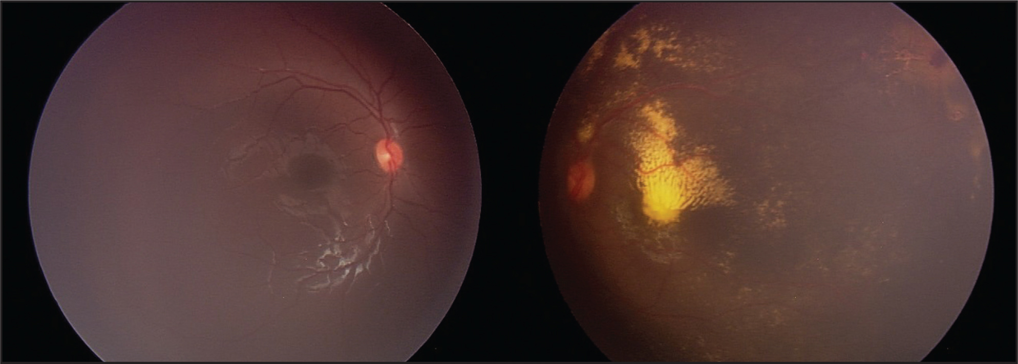 Unilateral Coats' Disease with Macular Exudate and Superotemporal Retinal Telangiectasias in the Left Eye.