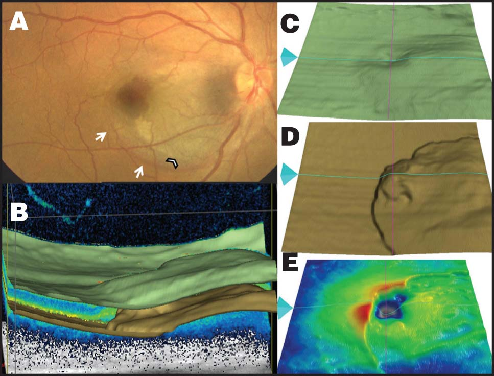 Case 1. (A) Fundus Photograph 3 Days After Trauma Showing the Extent of the Submacular Hemorrhage. The Temporal Edge of the Hemorrhage Appeared to Be Clearing, Indicating the Previous Extent of the Hemorrhage (white Arrows), Whereas the Arrow Head Shows the New Edge. (B) Advanced Three-Dimensional Segmentation Analysis of the 512 × 128 Macular Cube Scan Shows Elevation of Both the Internal Limiting Membrane (ILM) and Retinal Pigment Epithelium (RPE) Due to the Submacular Hemorrhage. (C) ILM Segmentation Map. (D) RPE Segmentation Map. (E) ILM–RPE Thickness Map Shows Normal Retinal Thickness in the Area Corresponding to the Submacular Bleed.