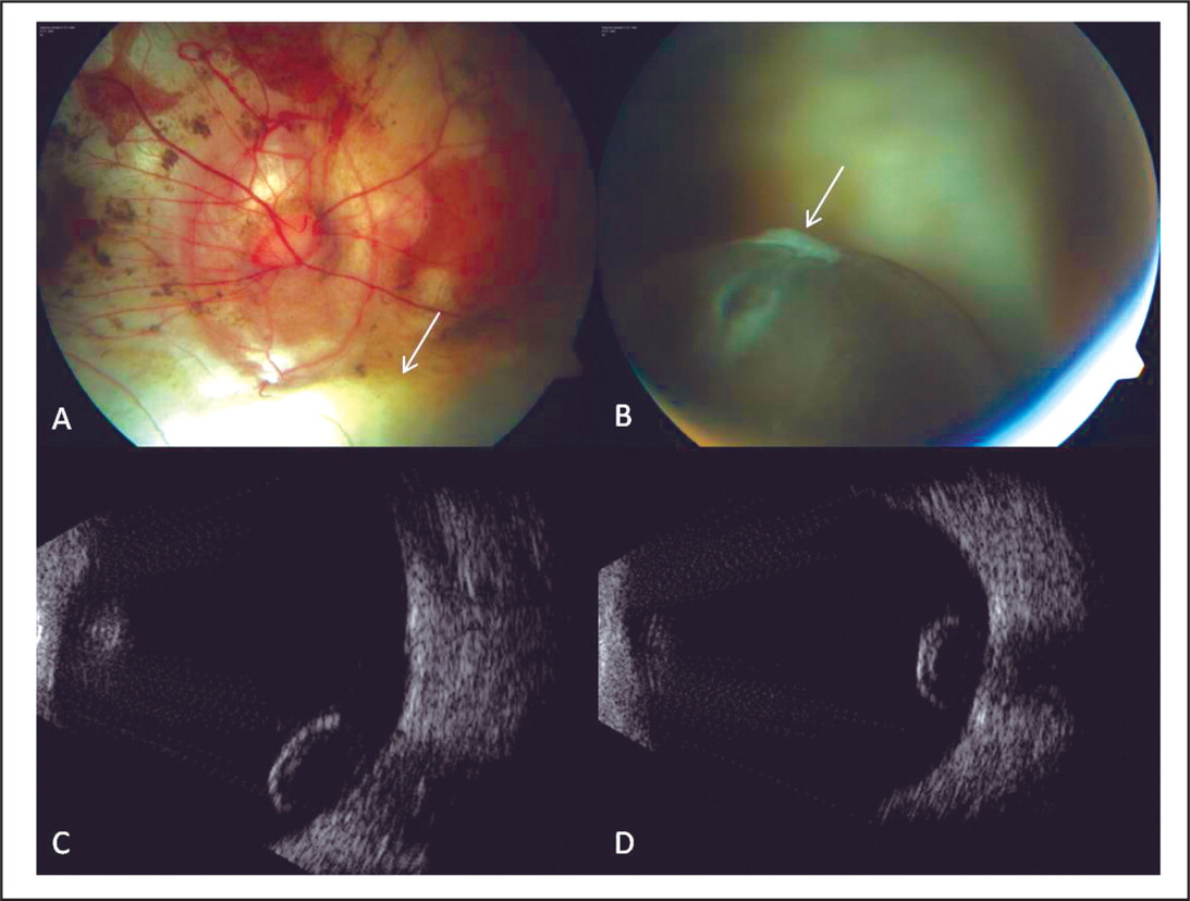 (A) Color Fundus Photograph of the Right Eye Showing the Peripapillary Atrophy and Posterior Staphyloma Due to Degenerative Myopia, and the Superior Edge of the Large Inferior Choroidal Coloboma (arrow). (B) An Inferiorly Located Pigmented Preretinal Mass Was Visible Just Behind the Iris. The Mass Appeared to Be Freely Mobile, Was Cystic with Clear Contents, and Had a Thin, Pigmented Wall. Glial Remnants that Probably Reflect the Previous Site of Attachment Were Visible Overlying the Tumor (arrow). (C) Ultrasonography Confirmed that the Inferiorly Located Lesion Was Cystic and Freely Mobile with No Attachment to the Inner Ocular Structures. (D) Following Supine Positioning, Ultrasonography Showed that the Lesion Floated Superiorly over the Optic Disc.