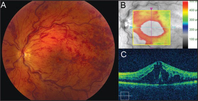 Fundus photograph (A) and spectral-domain optical coherence tomography (B and C) of the left eye demonstrating initial presentation with four quadrants of retinal hemorrhage, vessel tortuosity, and macular edema.