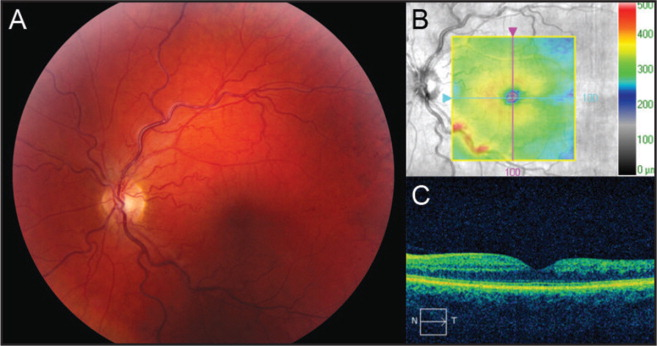 Fundus photograph (A) and spectral-domain optical coherence tomgraphy (B and C) of the left eye demonstrating marked improvement of retinal hemorrhages and macular edema.