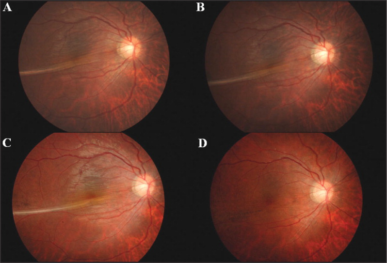 Serial fundus photographs of the right eye (A) at 2 weeks after retinal reattachment surgery demonstrating macular fold along the border of the previously detached and attached retina. (B) One and (C) 3 months after surgery, the macular fold persisted. (D) Twenty months after surgery, the macular fold resolved spontaneously.