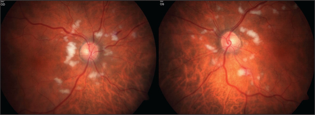 Fundus photographs of both eyes at presentation, demonstrating multiple peripapillary cotton-wool spots bilaterally.