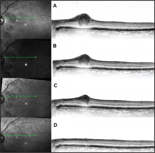 High-resolution spectral-domain optical coherence tomography documentation of the clinical course of one of the lesions. Marked focal retinal nerve fiber layer thickening and hyper-reflectivity was demonstrated at presentation (A), which gradually improved at 1 week (B) and 3 weeks (C) until restoration of normal retinal configuration after 4 months (D).