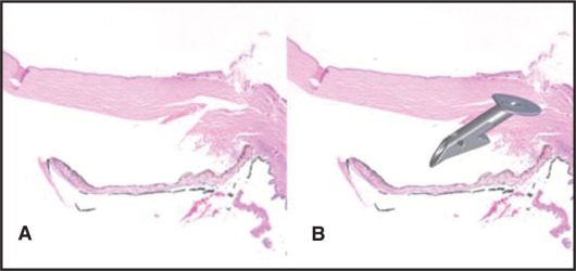 (A) Histologic section of the right eye discloses the imprint of the Ex-PRESS (Optonol, Ltd., Neve Ilan, Israel) shunt with minimal cellular reaction. (B) Artistic rendition of Ex-PRESS shunt present within the corneoscleral imprint (hematoxylin–eosin, original magnification ×40).