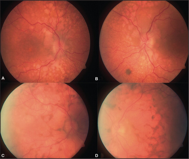 (A and B) Color fundus photographs at presentation: multiple confluent oval patches of retinal pigment epithelium (RPE) loss. (B) Small choroidal pigmented lesion inferonasal to the optic nerve. This lesion showed progressive enlargement (see Fig. 4, right). (C and D) Color fundus photographs at 8 months showing progressive enlargement of areas of RPE loss.