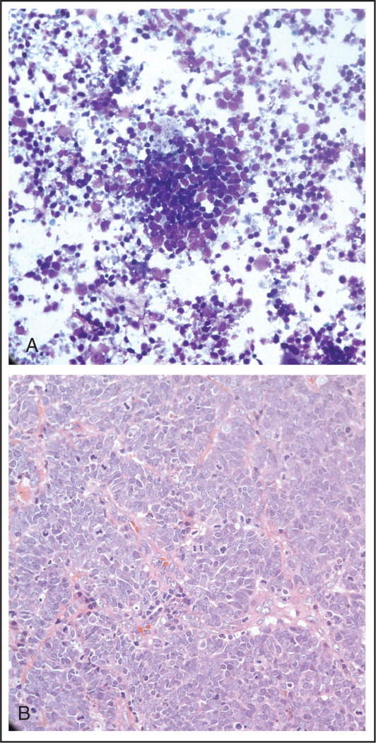 (A) Cytospin of fluid from the vitrectomy cassette demonstrating tumor cells characterized by scant cytoplasm and enlarged, molded, hyperchromatic nuclei with indistinct nucleoli. (B) These features were similar to the cerebellar tumor that was biopsied 2 years before, showing small neoplastic cells with abundant mitoses.