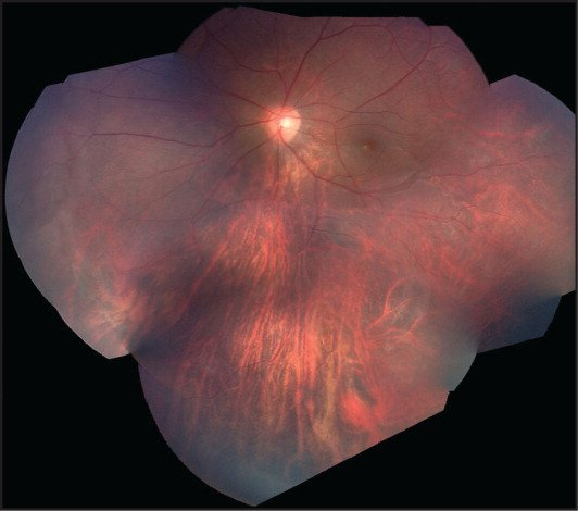 Fundus photograph of the left eye with abnormal macular and peripheral vasculature.