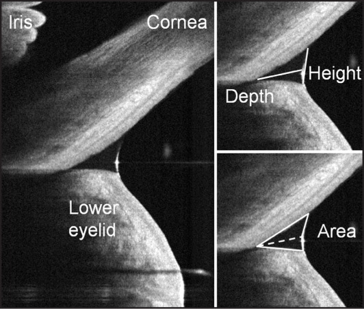 The tear meniscus height and depth on a vertical optical coherence tomography section centered on the inferior corneal–eyelid junction. The cross-sectional area was calculated using a dual triangle approximation.