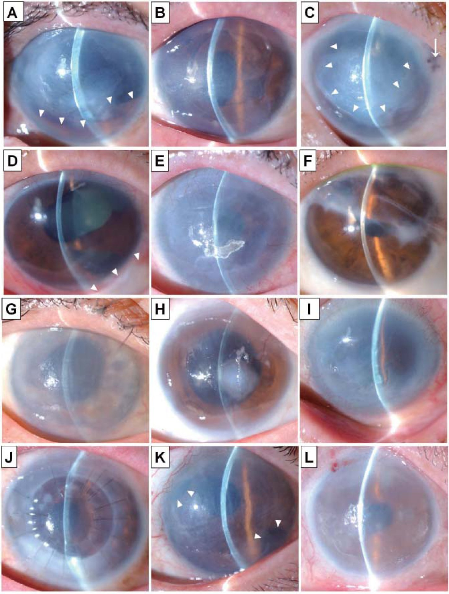Rationale For Performing Penetrating Keratoplasty Rather -7563