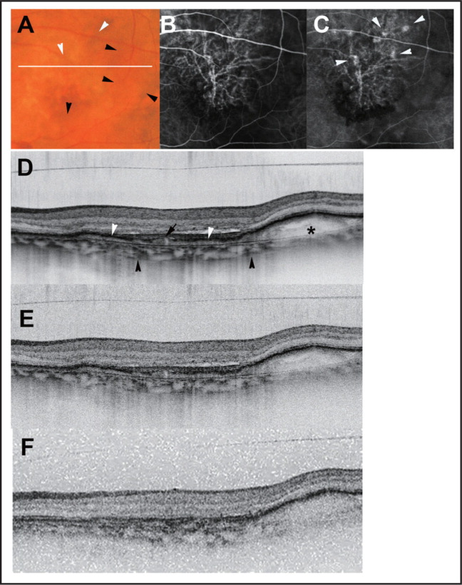 The left eye of a 63-year-old man exhibited decreased visual acuity. A color fundus photograph (A) shows multiple hemorrhagic pigment epithelium detachments (black arrowhead) with orange-red spots in the macula (white arrowhead). On the indocyanine green angiography images, a branching vascular network was clearly observed in the early phase (B) and polypoidal lesions adjacent to the vascular network were readily observed in the late phase (C). The white line indicates the scanning line of optical coherence tomography (OCT) images (D, E, and F). In the high-penetration enhanced depth imaging OCT image (D), a branching vascular network (white arrowhead), a polypoidal lesion (black arrow), and subretinal pigment epithelium (RPE) hemorrhage (*) were clearly observed. The chorioscleral interface was readily visualized (black arrowhead). On both high-penetration OCT (E) and OCT at 840-nm images without image averaging (F), these sub-RPE lesions were depicted as blurred, low-contrast structures; however, high-penetration OCT images without image averaging displayed better contrast of sub-RPE lesions than OCT at 840-nm images without image averaging.