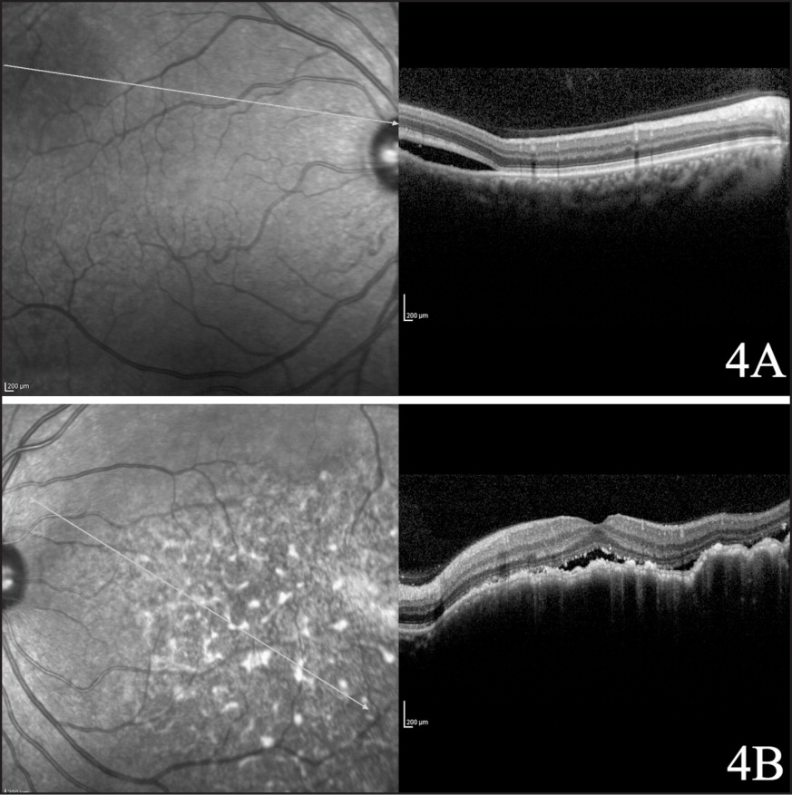 (A) Spectral-domain optical coherence tomography (SD-OCT) of the right eye in the context of leopard spot retinopathy shows a pattern of hyperintense irregular spots in the context of the photoreceptor layer and in the retinal pigment epithelium (RPE), subretinal fluid, and marked irregularity of the RPE, with thickening and gross undulation. (B) SD-OCT of the left eye shows a macula-sparing serous neuroepithelial elevation over normal retinal pigment epithelium.