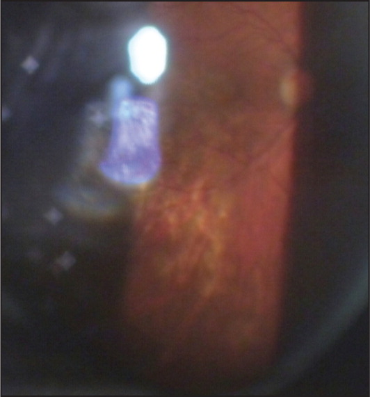 Funduscopic view of the right eye at presentation. Chorioretinal edema of the posterior pole.