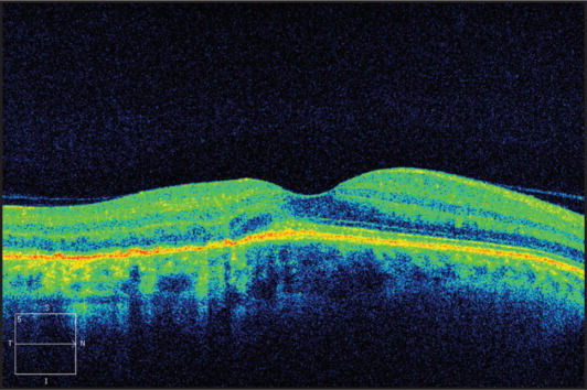 Spectral-domain optical coherence tomography section of the right macula at presentation.