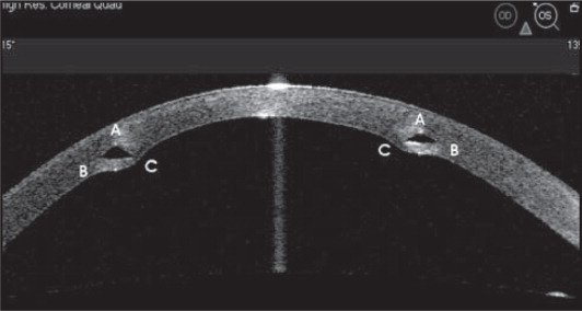 Postoperative high-resolution anterior-segment optical coherence tomography image of the left eye of a 45-year-old woman from the 135° to 315° meridian showing a cross-section of implanted ring segments where A represents the apex, B the outer corner, and C the inner corner with respect to the corneal center.