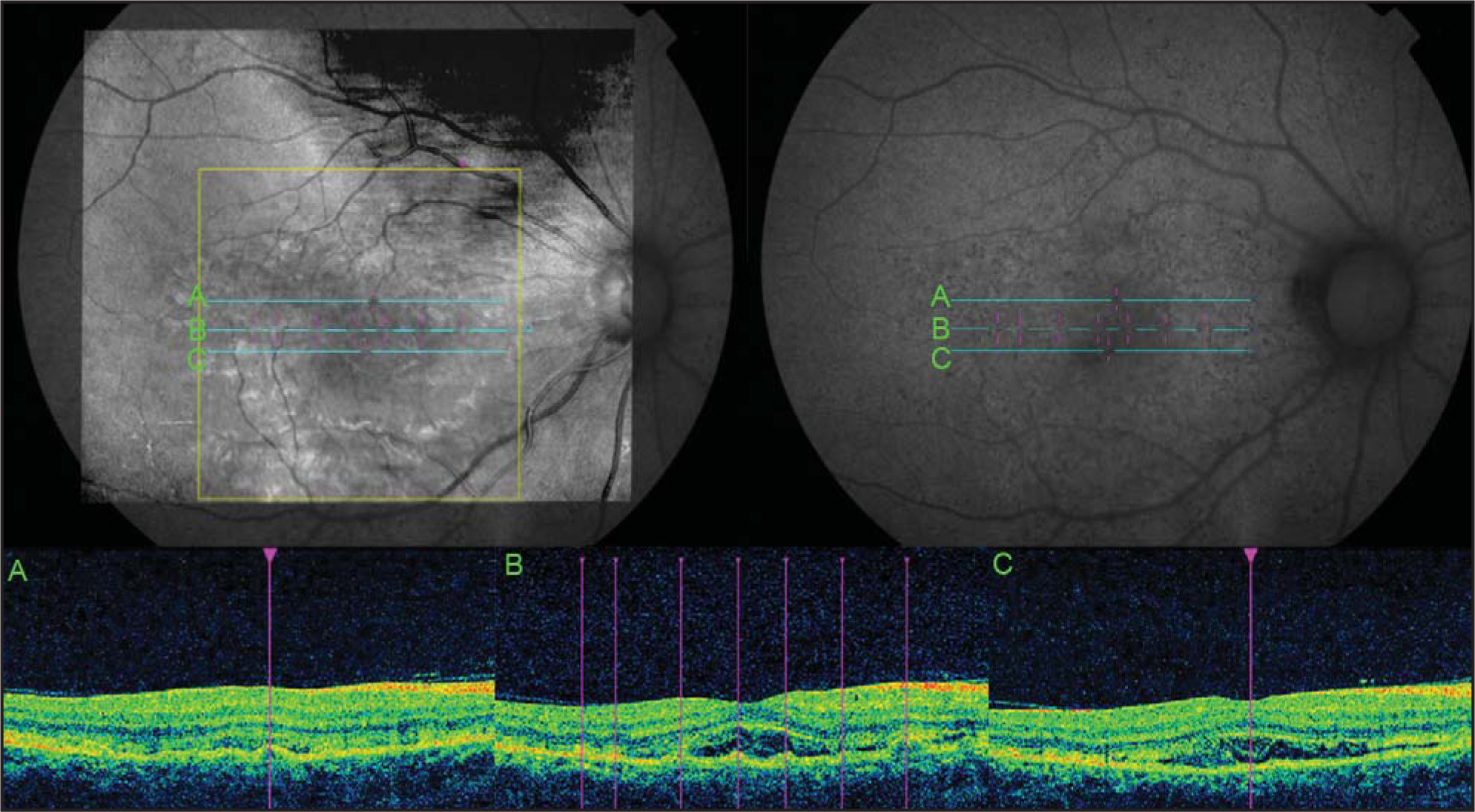 Manually registered fundus autofluorescence (FAF) and infrared images (registered to optical coherence tomography [OCT] fundus image). FAF images (upper right) were manually registered to the infrared image of the high-definition OCT (upper left) using blood vessels and the optic nerve as points of reference. The OCT B-scans were then studied to identify the areas of subretinal hyperreflective membrane or retinal pigment epithelial (RPE) detachment and evaluate if they correspond to hyperautofluorescent or hypoautofluorescent areas. Hypoautofluorescent areas were also evaluated for corresponding changes on the OCT. Line A reveals that hypoautofluorescent spots correspond to RPE detachments and disruptions. Line B shows that RPE detachments and disruptions correspond to hypoautofluorescent dots on the FAF of varying intensity. Line C reveals that the hyperreflective membrane under the retina does not correspond to any focal hyperautofluorescence on the FAF, although this determination is difficult because the membrane is rather diffuse.