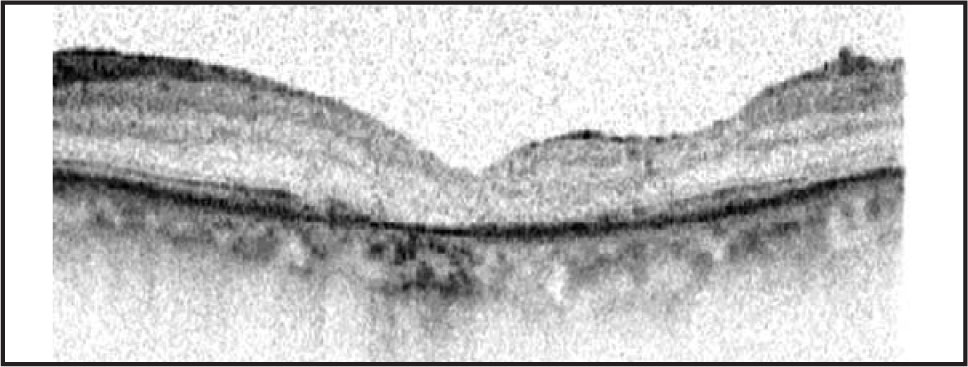 Complete closure of macular hole demonstrated on postoperative month 1 examination.