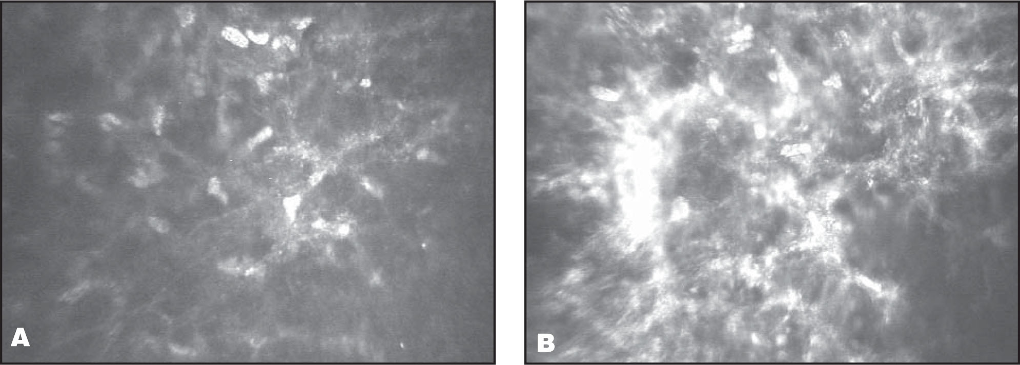 Confocal image of the anterior stroma activated keratocytes (A) 2 weeks (340 × 255 μm) and (B) 1 month (340 × 255 μm) after surgery.