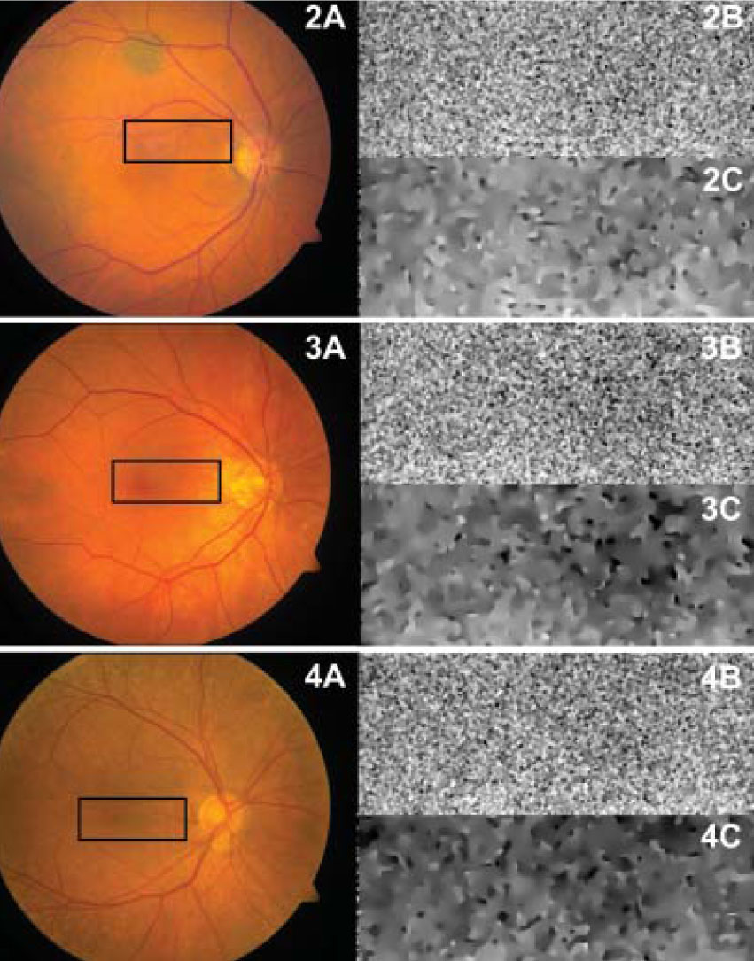 Flavoprotein fluorescence (FPF) of normal eyes. Color fundus photographs with the FPF analysis area highlighted in black (2A, 3A, 4A), corresponding FPF images (2B, 3B, 4B), and FPF images after anisotropic diffusion filtration (2C, 3C, 4C) of 73- (2A, 2B, 2C), 79- (3A, 3B, 3C), and 84- (4A, 4B, 4C) year-old eyes.