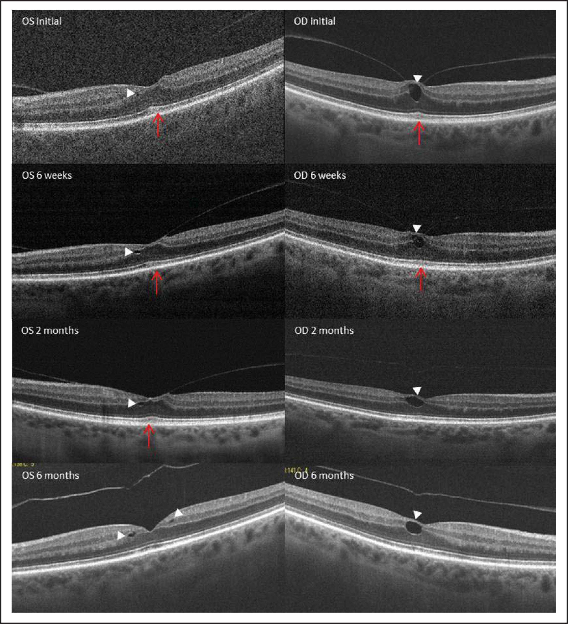 "Serial optical coherence tomography examination from case 1 over a follow-up period of 6 months. Arrowheads point to the foveal pseudo cysts. Arrows highlight the outer retinal changes that occurred as a result of ""traction"" from the detaching posterior vitreous."