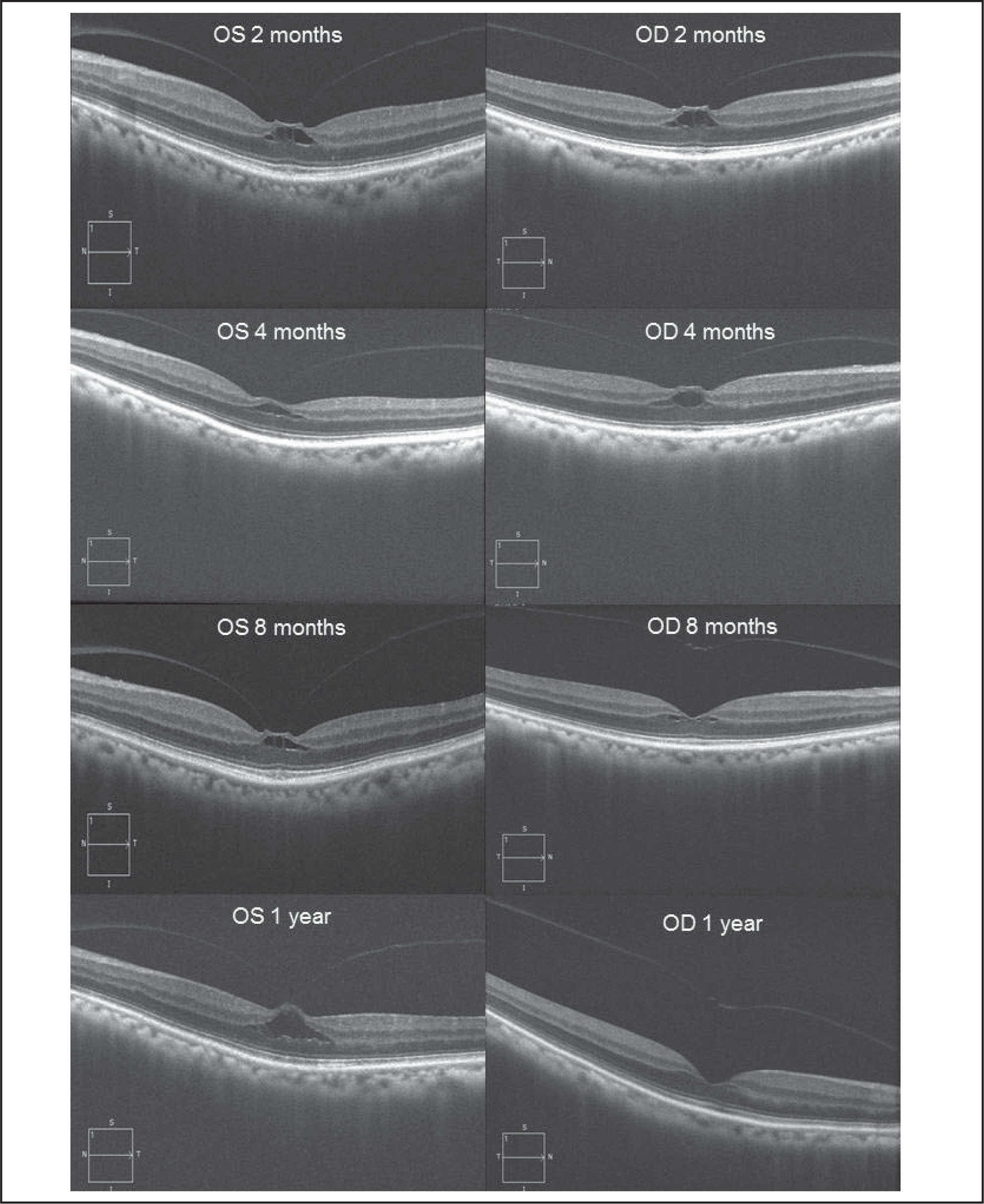 "Follow-up optical coherence tomography images from both eyes performed at 2, 4, and 8 months, and 1 year. A complete posterior vitreous detachment was noted in the right eye at the 8-month follow up. The foveal pseudo cyst and outer retinal changes resolved in the right eye by 1 year. The foveal pseudo cyst was enlarging in the left eye as a result of increased ""traction"" from the detaching posterior vitreous. The posterior vitreous was still attached at 1 year."