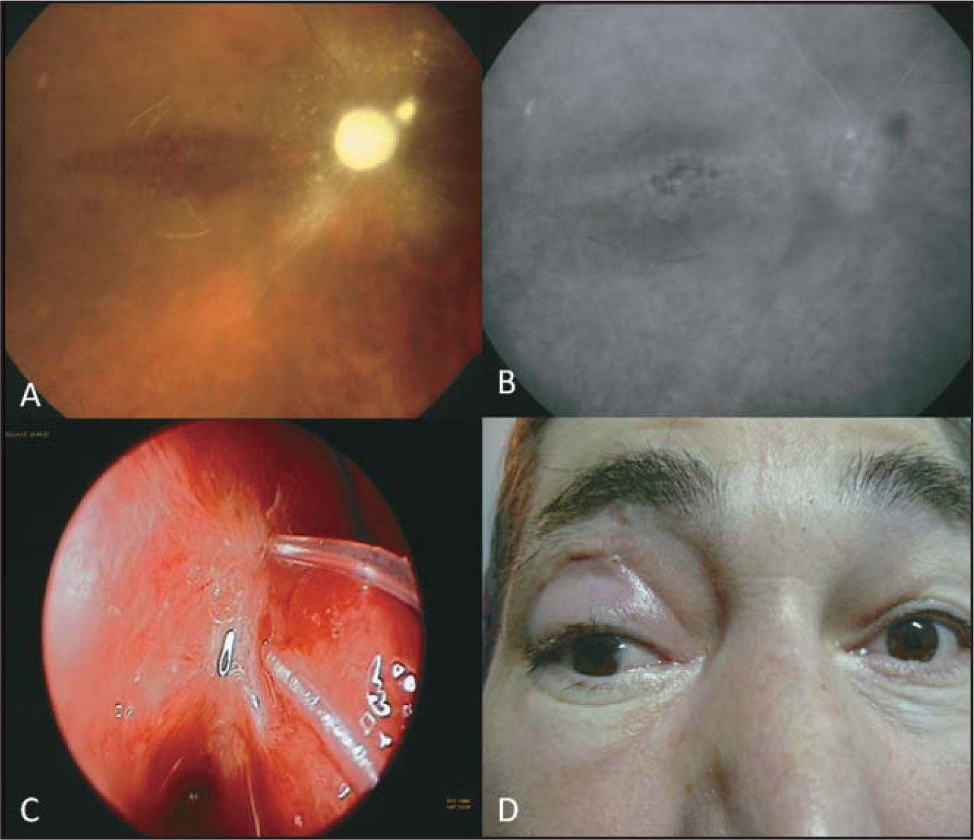 (A) Fundus photograph at 3 months shows optic atrophy and obliterated vessels. (B) Fluorescein angiography shows diffuse window defects in the posterior pole and hypofluorescent focus nasal to the optic disc at 3 months. (C) Endoscopic examination reveals silicon tubes and scar tissue next to the middle turbinate. (D) The patient with slight ptosis and exotropia at 3 months.