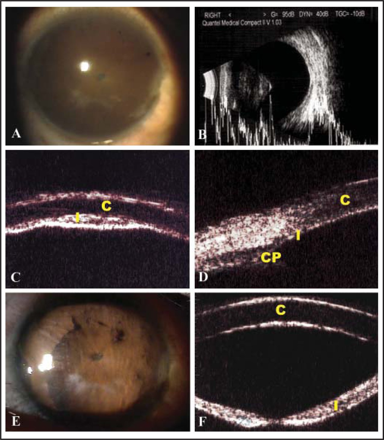 (A) Pretreatment photograph of anterior segment shows flat anterior chamber and synechial closure of the pupil margin. (B) B-scan ultrasonography shows pooling of aqueous humor behind a posterior vitreous detachment and there is no choroidal detachment or hemorrhage. (C and D) Pretreatment ultrasound biomicroscopy shows a flat anterior chamber and forward movement of the ciliary processes. (E) Posttreatment photograph of anterior segment shows a centrally deep anterior chamber and peripheral anterior synechiae. (F) Posttreatment ultrasound biomicroscopy shows a centrally deep anterior chamber. C = cornea; I = iris; CP = ciliary process.