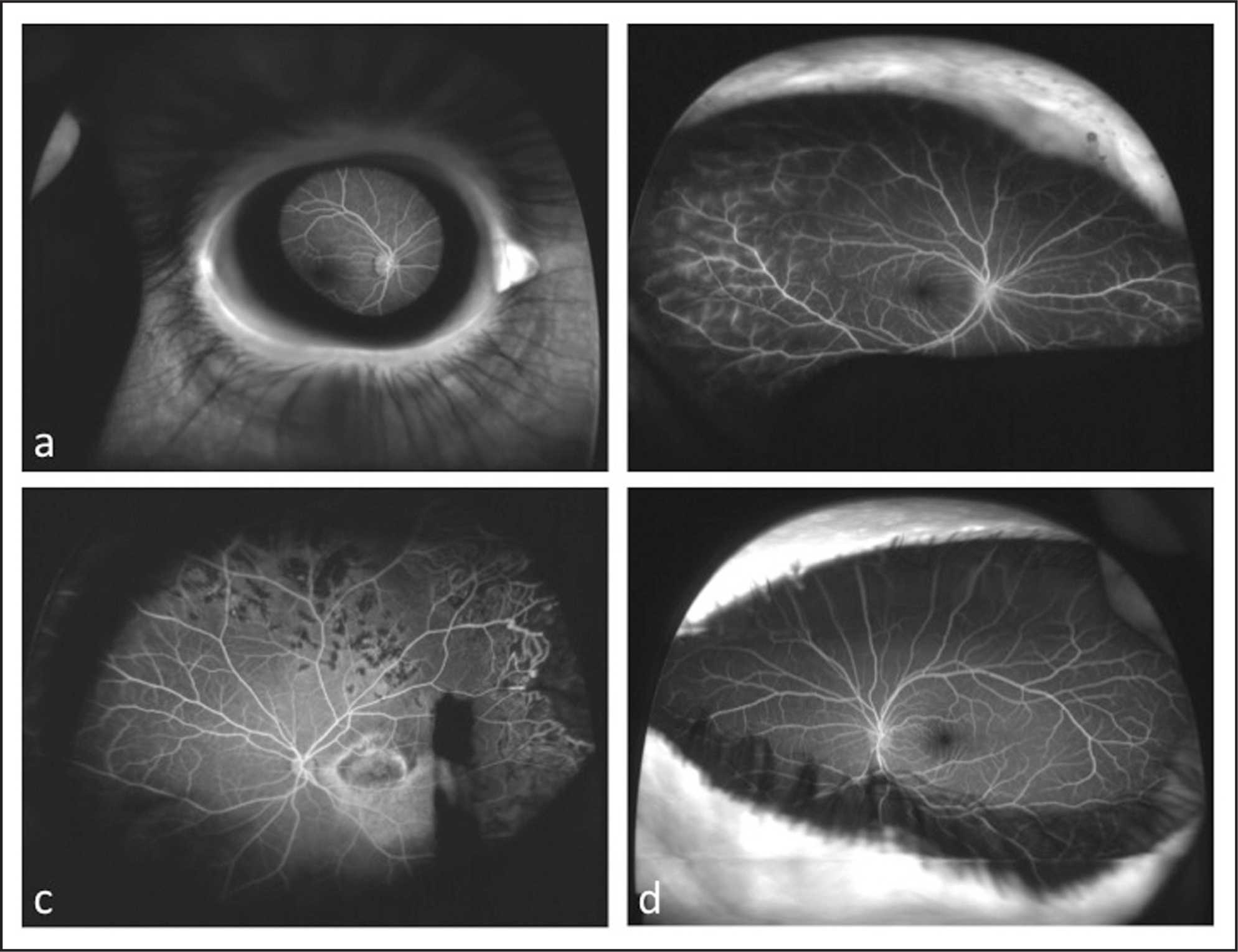 (A) Eyelash artifact in the inferonasal quadrant in patient 2. (B) Eyelid artifact with a normal angiogram in patient 8. (C) Anterior corneal scar with angiogram showing peripheral laser scars and non-perfusion in Coat's disease and (D) iris and eyelid artifact with a normal angiogram in the fellow eye in patient 7.