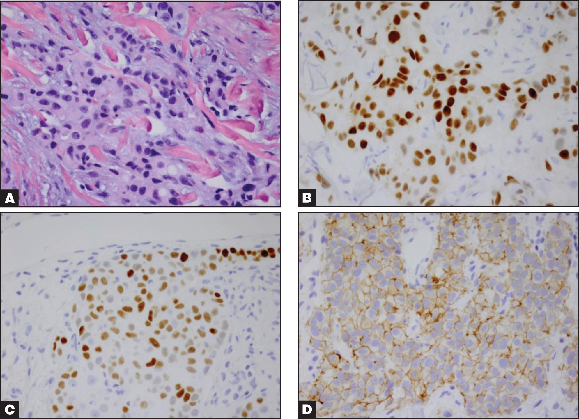 (A) The tumor cells contain pleomorphic vesiculated nuclei, prominent nucleoli, and abundant eosinophilic cytoplasm (hematoxylin and eosin 100×). (B) Immunohisochemical stains are positive for progesterone receptor in tumor cell nuclei (peroxidase-antiperoxidase 100×). (C) Immunohistochemical stains are positive for estrogen receptor in tumor cell nuclei (peroxidase-antiperoxidase 100×). (D) Immunohistochemical stains are positive for HER-2/neu in tumor cell membranes (peroxidase-antiperoxidase 100×).