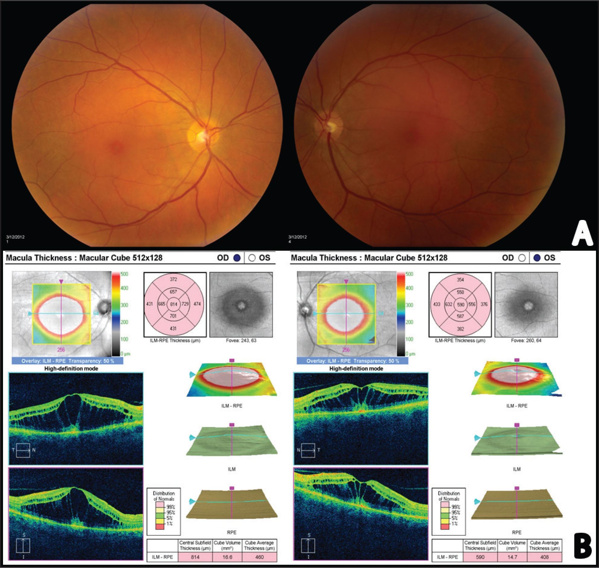 (A) Dilated fundus exam and color fundus photography demonstrate evidence of bilateral macular cystic edema. (B) Optical coherence tomography confirmed the presence of dilated cystic channels in the outer plexiform layer.