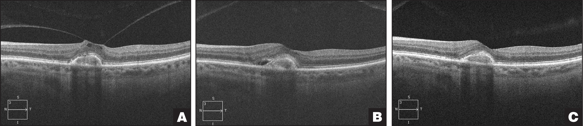 (A) Wet macular degeneration controlled with regular aflibercept injections was treated with ocriplasmin. (B) At day 14, the vitreomacular adhesion released but the subretinal fluid recurred and was treated with repeat aflibercept and (C) had subsequent resolution of subretinal fluid 8 weeks later.