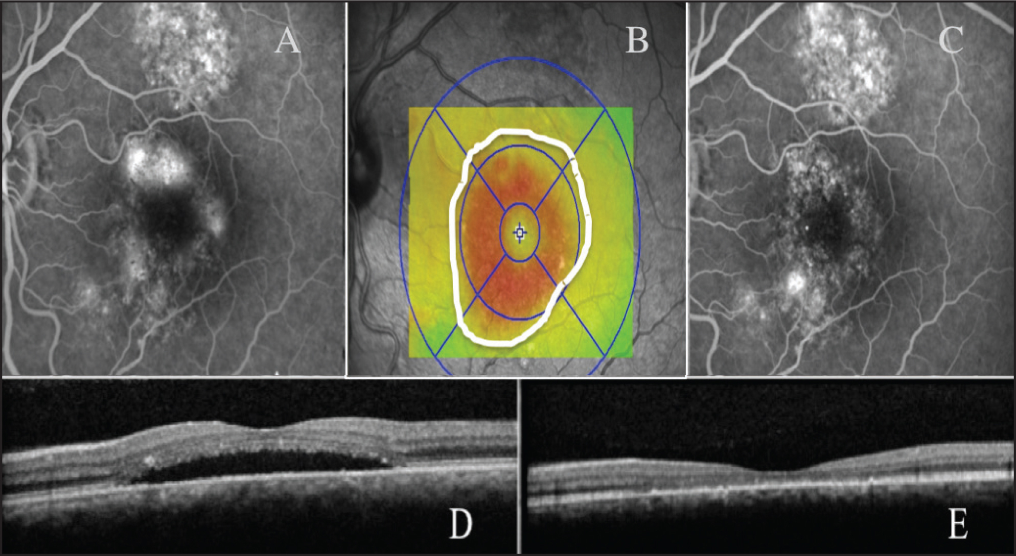 Fluorescein angiography, fundus autofluorescence, and spectral-domain OCT of a treated patient. (A) Fluorescein angiogram at baseline. (B) OCT infrared thickness map illustrating the area of thicker retina corresponding to the detached neurosensory retina, where the laser treatment was performed. (C) Fluorescein angiogram at 3 months. (D) Spectral-domain OCT at baseline. (E) Spectral-domain OCT at 3 months.