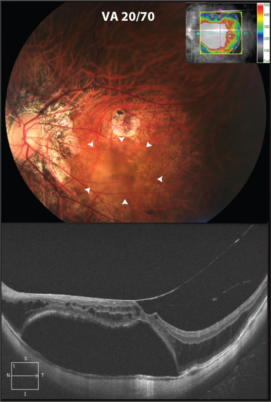 Fundus photograph of the left eye at presentation shows tilted disc, peripapillary atrophy, and posterior staphyloma consistent with degree of high myopia (top). Within the arcades, just inferior to an atrophic lesion, is a retinal detachment (white arrowheads) correlating to area of thickening on corresponding OCT map image (inset). OCT shows vitreomacular traction, macular schisis, and subretinal fluid in the macula (bottom).