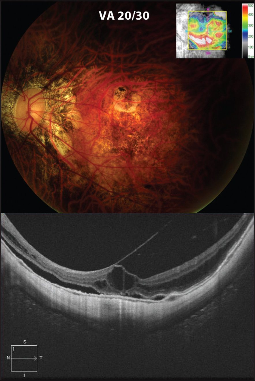 Six weeks after presentation, the retinal detachment is barely perceptible (top), and the corresponding OCT map image (inset) shows a significant reduction in thickening inferiorly. OCT shows continued persistent vitreomacular traction, near resolution of subretinal fluid, and schisis-like changes in the fovea (bottom).