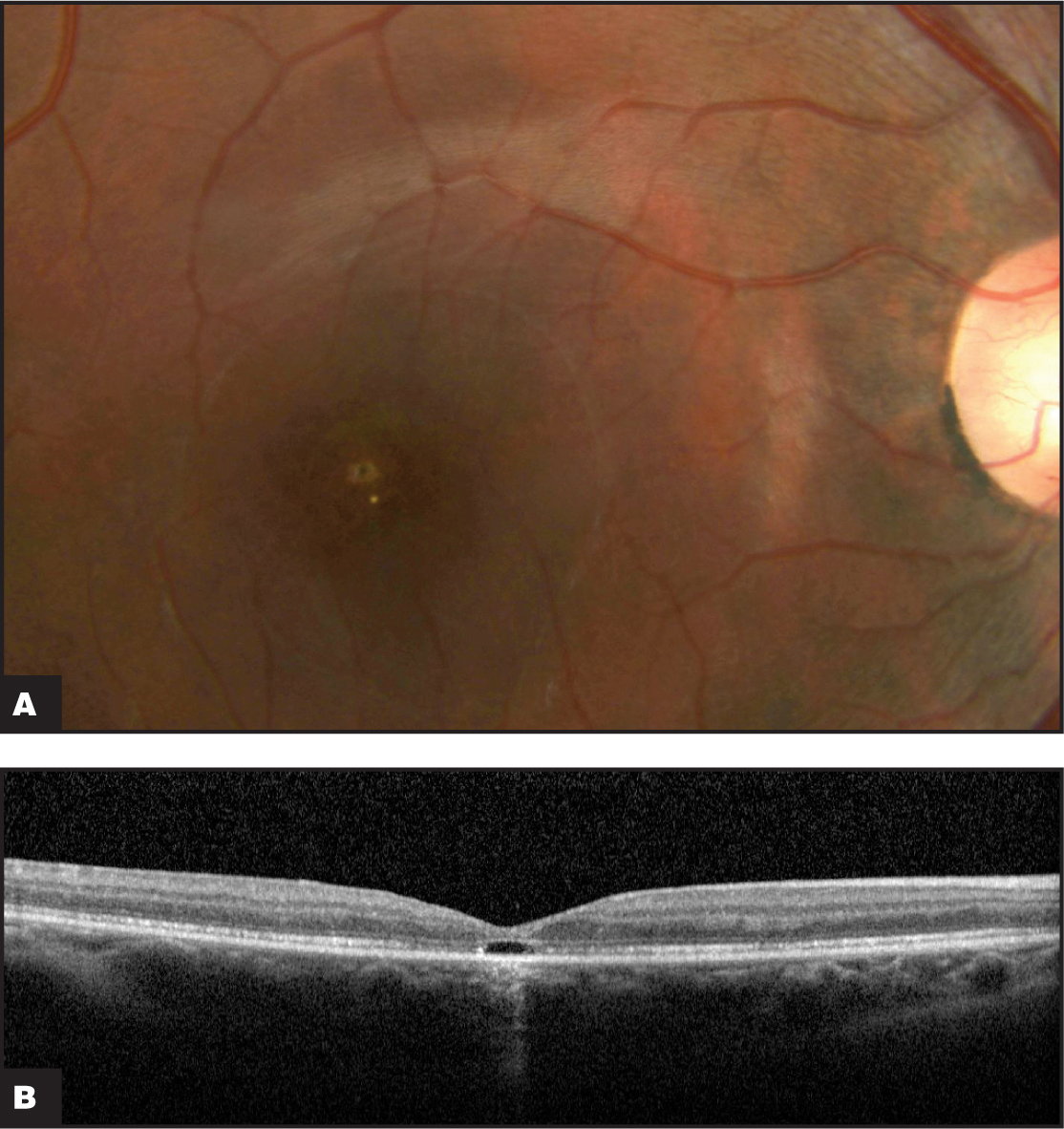 (A) Fundus photograph 6 weeks after macular hole repair surgery. (B) Spectral-domain OCT 6 weeks after surgery demonstrating macular hole closure with a small photoreceptor IS/OS defect.