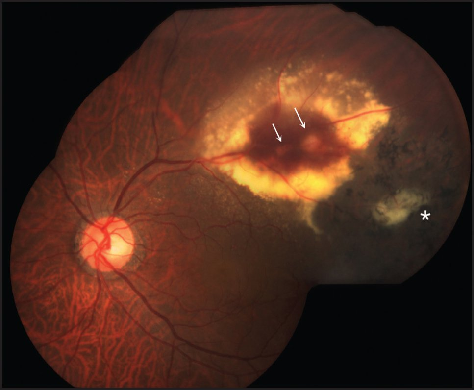 Fundus photography shows multiple retinal telangiectasias (arrows) along the superotemporal arcade surrounded by intraretinal hemorrhages and lipid exudates. There is macular edema involving the fovea. Temporally, there is subretinal fibrosis (asterisk) surrounded by pigmented chorioretinal atrophy.