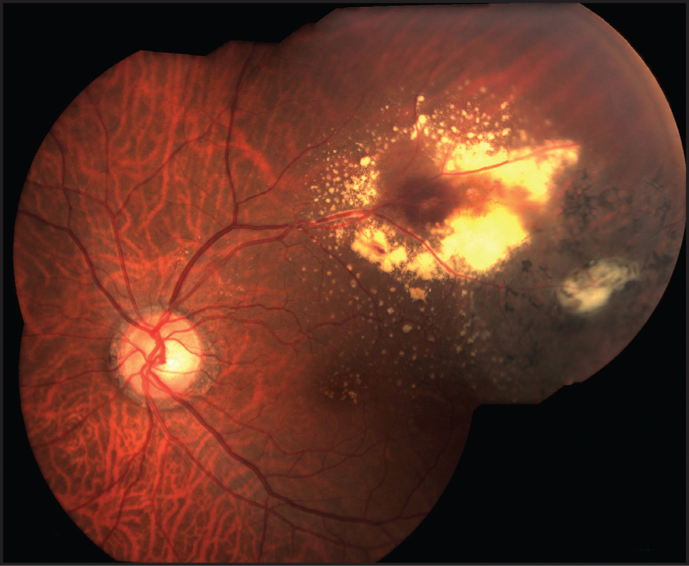 Fundus photography three months after initial presentation shows resolution of the macular edema with the presence of lipid exudates. There is a decrease in the intraretinal hemorrhages surrounding the multiple aneurysms.