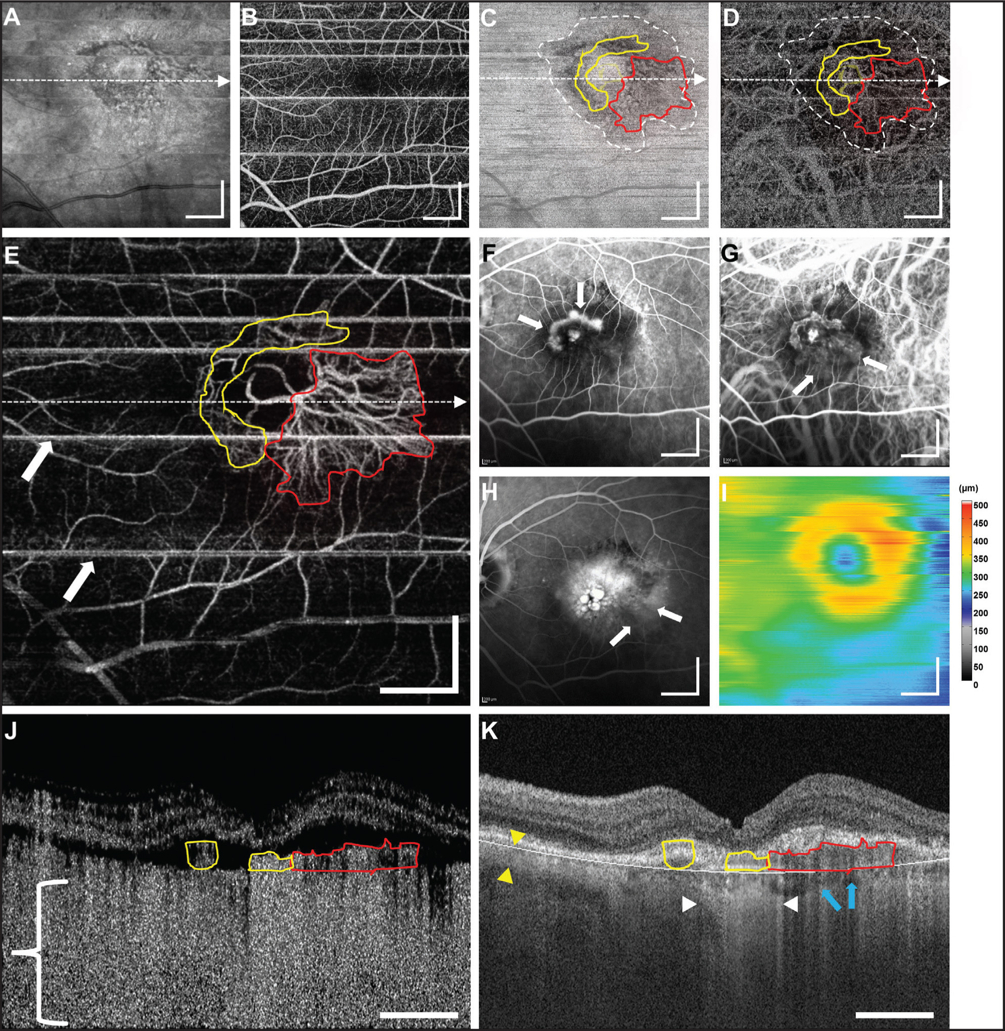An 87-year-old patient with a choroidal neovascularization (CNV) lesion exhibiting both occult and classic components. (A) En face mean projection of entire OCT intensity volume. (B) En face projection of the OCT angiogram volume through the depths spanned by the retinal vasculature. (C) En face slice of the OCT intensity volume at the depth of the choriocapillaris. The white dashed contour encircles an area of lower intensity. (D) En face slice of the OCT angiogram volume at the depth of the choriocapillaris. (E) En face projection of the OCT angiogram volume through the depths spanned by the CNV. The red outlining corresponds to the occult components of the lesion, while the yellow outlining corresponds to the classic components. The arrows point to motion artifacts that appear as straight white lines through the image. (F) Early-phase FA. Arrows point to the classic component. (G) Early-phase ICGA. Arrows point to the occult component. (H) Late-phase FA. Arrows point to area of stippled hyperfluorescence. (I) OCT retinal thickness map. (J–K) OCT intensity and OCT angiogram cross-sections, respectively, corresponding to the white dashed horizontal lines in (E). The bracket in (J) roughly spans the depths in which the OCT angiogram B-scan is uninterpretable due to shadowing from the choriocapillaris and choroidal vasculature above. The yellow arrows in K indicate the thickness of the choroid away from the lesion, the white arrows demarcate an area of increased light penetration due to RPE atrophy, and the blue arrows correspond to a region of shadowing from the CNV lesion. All OCT images are from a 6 mm × 6 mm area, and all scale bars are 1 mm. All OCT and OCT angiogram images were generated from a single volumetric scan.
