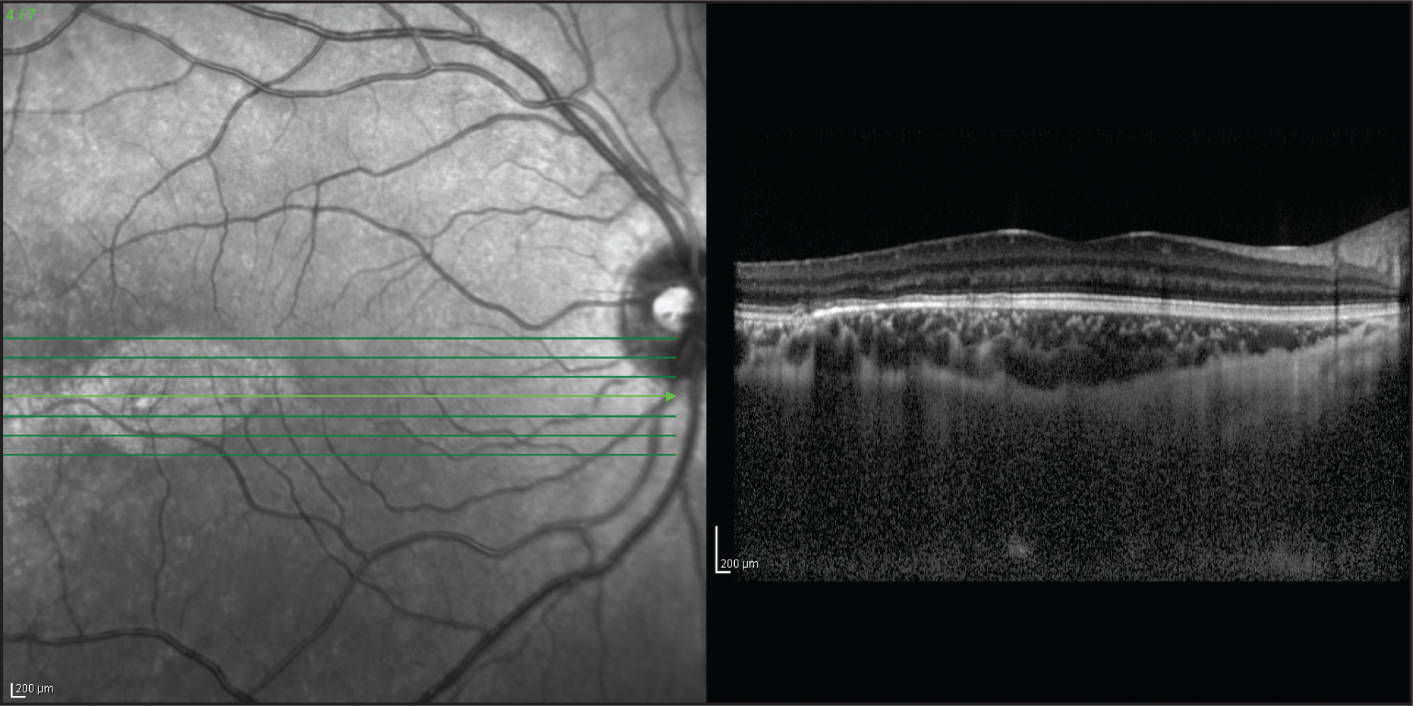 Spectral-domain optical coherence tomography. Note thinning of retina and retinal pigment epithelium, as well as increased choroidal reflectivity temporal to the center of the macula.