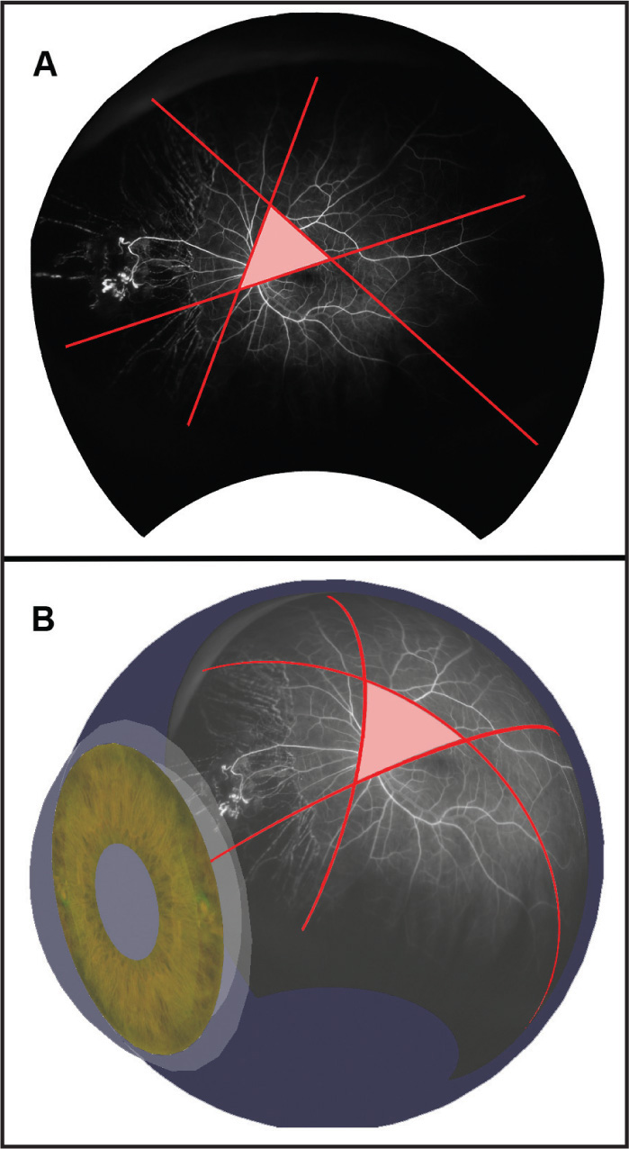 (A) Stereographic representation of a single optomap fluorescein angiogram (not a montage) with annotations. Three intersecting red lines define the area to be quantified (pink triangle). (B) Three-dimensional spherical representation of the same image and annotations. The polygon depicted (pink triangle) is bounded by three great circles (n=3).