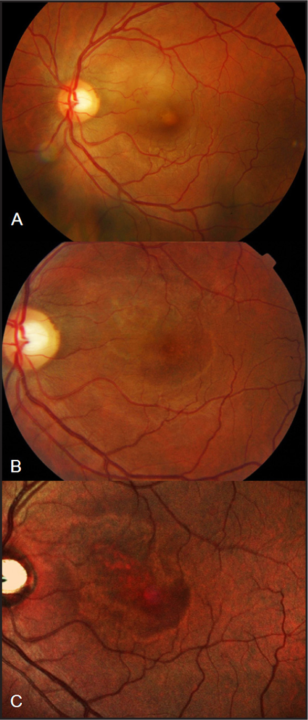 Color photograph of the left fundus demonstrating exudative neurosensory detachment involving the fovea and superonasal macula associated with small intraretinal hemorrhages and yellowish subretinal exudates at presentation (A) and after 1 week (B). Multi-Color fundus image at 3 months reveal pigmentary changes at the macula with a bull's-eye appearance (B).