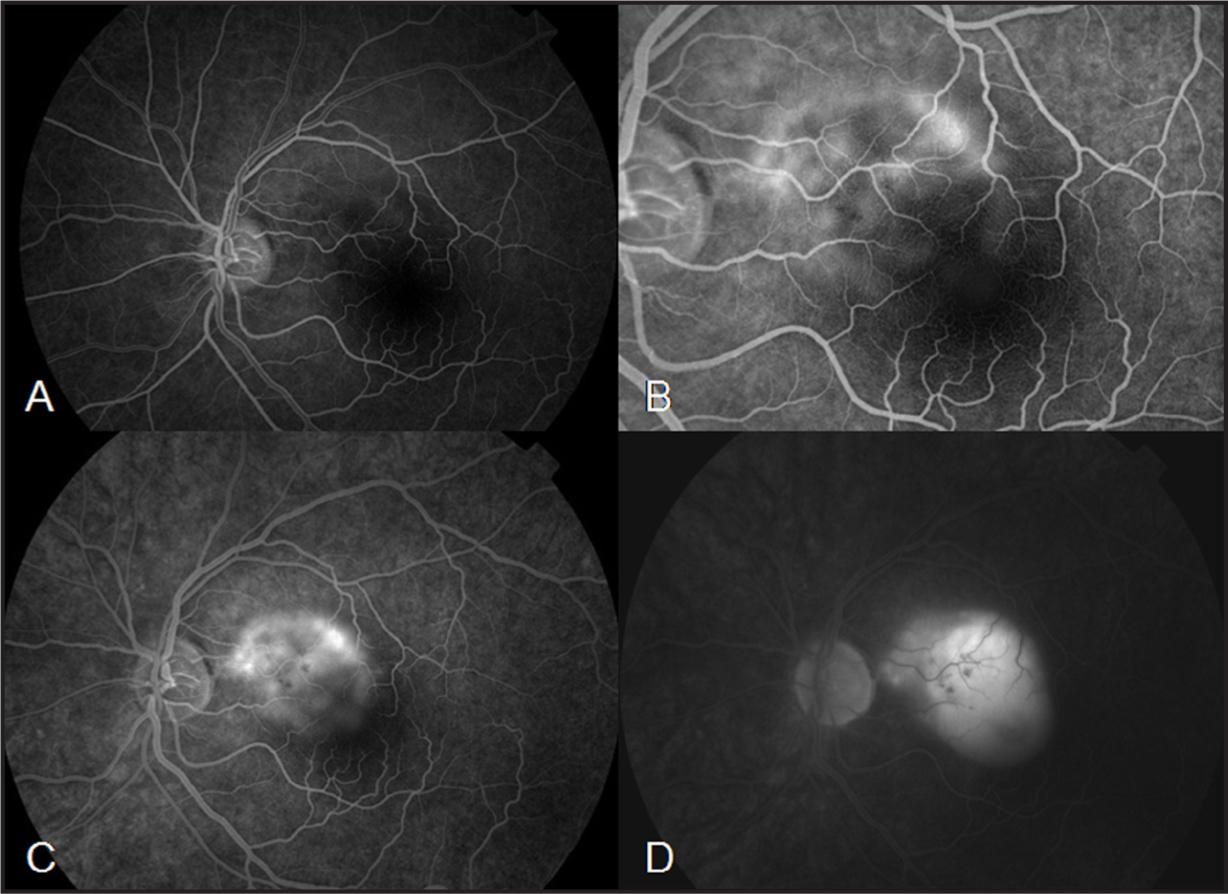 Fluorescein angiography frames. Hypofluorescence in the transit phase followed by an early irregular hyperfluorescence of the lesion (A–B) with pooling in the late frames (C–D).