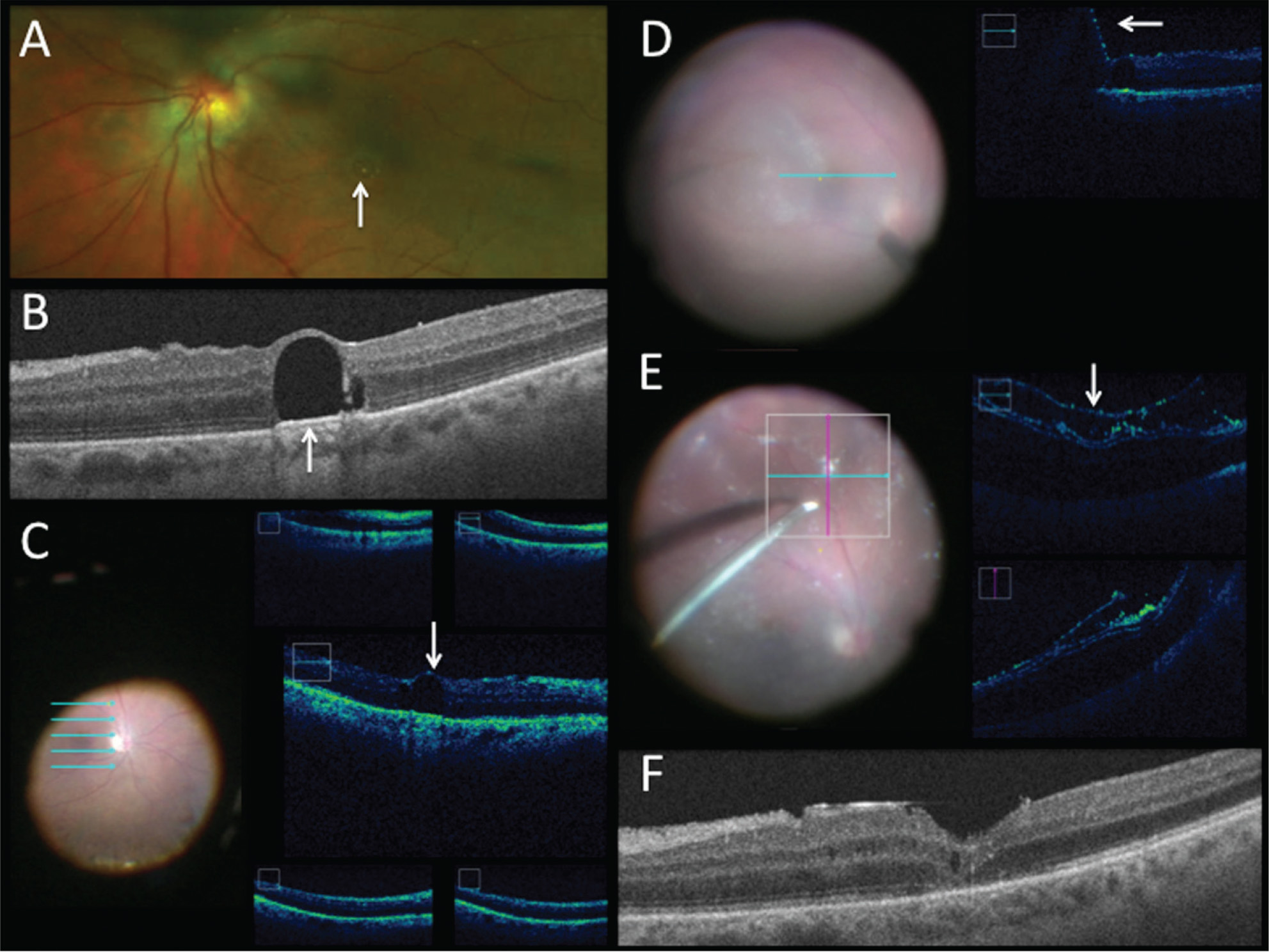 Intraoperative optical coherence tomography (iOCT) for subretinal perfluoro-n-octane (PFO) removal. (A) Macular photograph demonstrating chronic retained subfoveal PFO. (B) Preoperative OCT visualization of subretinal PFO. (C) En face view (left) with corresponding iOCT five-line raster (right) scan over macula depicting subretinal fluid present at beginning of case. (D) Intraoperative en face view of subretinal bleb induction with 41-gauge cannula (left) and iOCT one-line raster scan (right) demonstrating subretinal bleb approaching subretinal PFO. (E) Intraoperative en face view of inferior proliferative viteroretinopathy (PVR; left) with iOCT horizontal and vertical scan (right) demonstrating detached retina, PVR, and triescence staining. (F) OCT at 3 months postoperatively shows absence of PFO, inner segment/outer segment junction abnormalities, and trace cystoid edema.