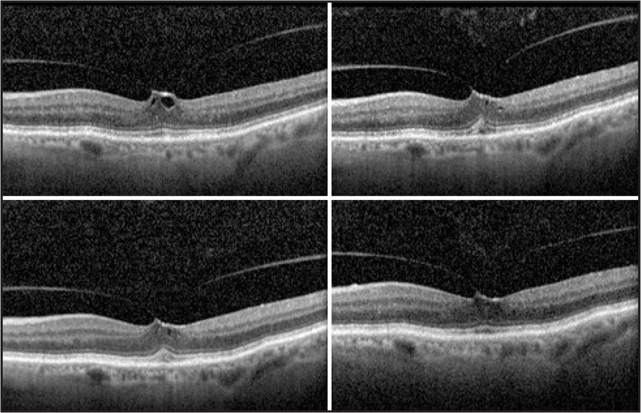 Patient 7. Eighty-one-year-old pseudophakic woman with focal vitreo-macular traction and inner-retinal cysts (top left). Area of vitreomacular traction narrowed and cysts decreased at day 3 (top right) and day 7 (bottom left). One month after treatment, vitreomacular traction remains with intraretinal cysts resolved and visual acuity unchanged (bottom right).