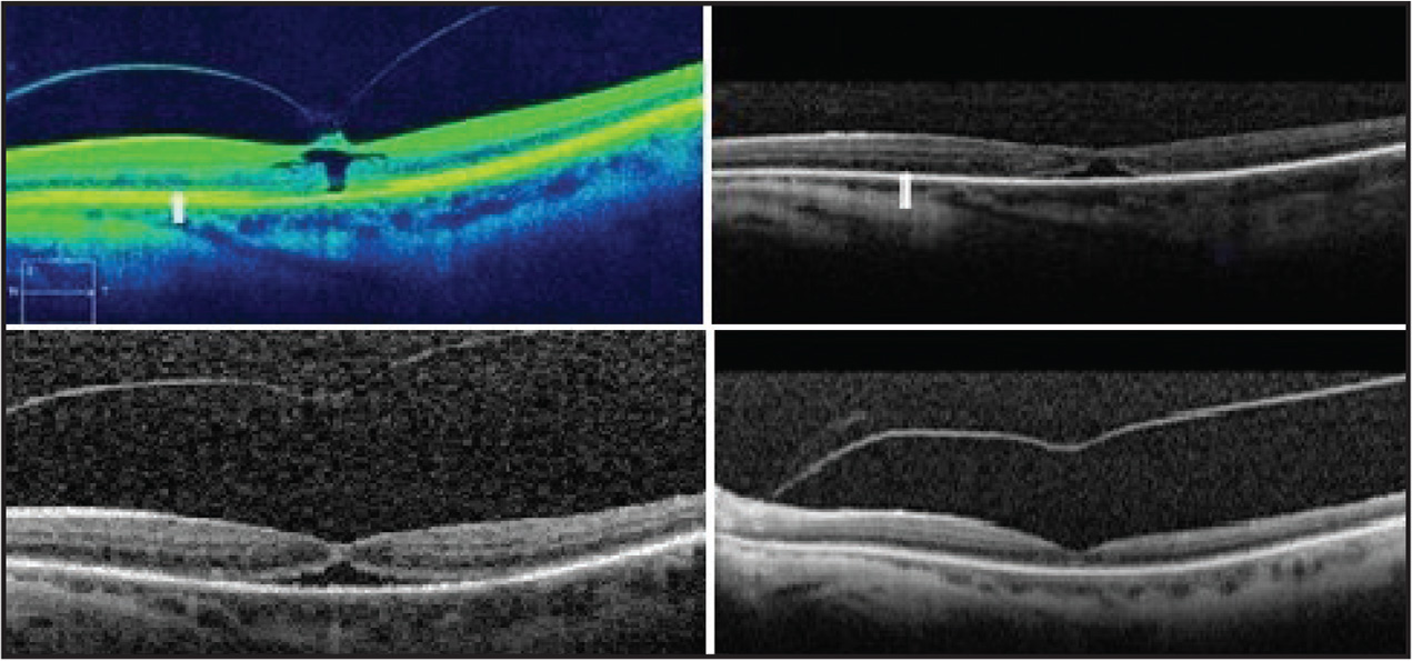 Patient 9. Sixty-seven-year-old pseudophakic woman with focal vitreomacular traction and impending macular hole (top left). The photoreceptor ellipsoid layer is centrally disrupted in association with the impending macular hole but otherwise preserved throughout the scan (arrow). Vitreomacular traction is released at day 1 after treatment with a small area of subretinal fluid present (top right). The ellipsoid layer appears diffusely disrupted throughout the scan, beyond the central area involved by the subretinal fluid (arrow). The subretinal fluid appears broader at week 1 (bottom left) but is resolved at week 3 (bottom right). The ellipsoid layer remains altered in these subsequent visits.