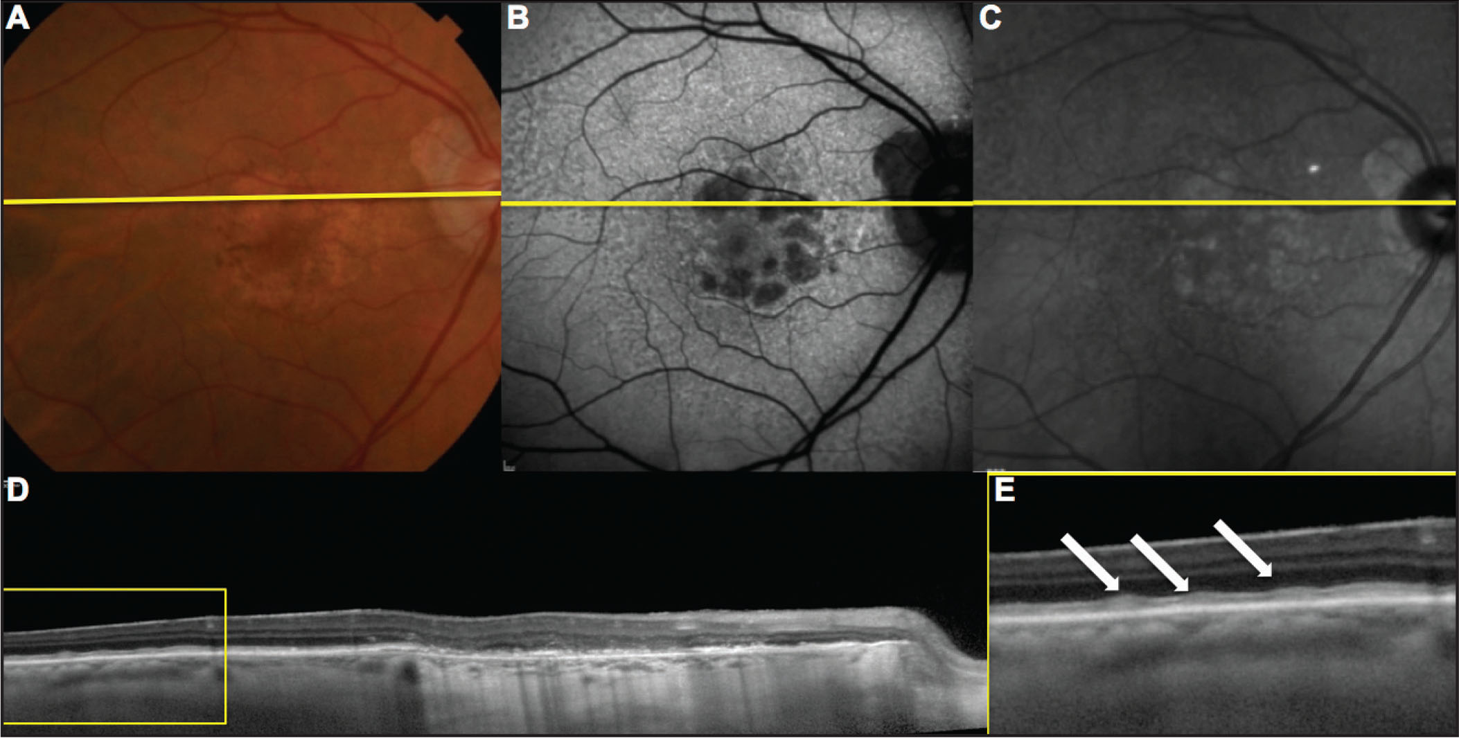 Different imaging modalities showing reticular pseudrodrusen (RPD) presentation in a 93-year-old woman with geographic atrophy (GA). (A) Color fundus image. (B) Fundus autofluorescence image. (C) Infrared reflectance image. (D) Spectral-domain (SD) OCT horizontal B-scan. (E) Magnified SD-OCT horizontal B-scan showing RPD (white arrows). The yellow line in A, B, and C represents the scanned area on SD-OCT.