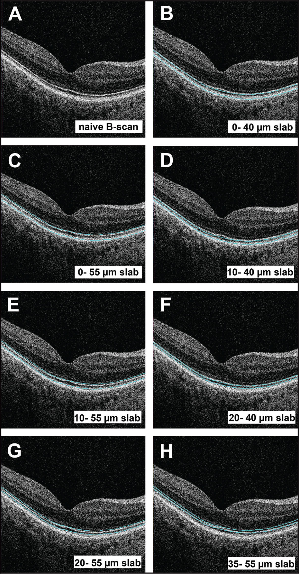 Spectral-domain OCT B-scans through the foveal center of a normal retina in the right eye of a 57-year-old man. The blue lines indicate the position of the intraretinal slabs, superimposed on a B-scan. (A) B-scan with no overlay to demonstrate the retinal layers. (B) B-scan showing a 40-µm thick slab overlay located 0 to 40 µm above the retinal pigment epithelium (RPE). (C) B-scan showing a 55-µm thick slab overlay located 0 to 55 µm above the RPE. (D) B-scan showing a 30-µm thick slab overlay located 10 to 40 µm above the RPE. (E) B-scan showing a 45-µm thick slab overlay located 10 to 55 µm above the RPE. (F) B-scan showing a 20-µm thick slab overlay located 20 to 40 µm above the RPE. (G) B-scan showing a 35-µm thick slab overlay located 20 to 55 µm above the RPE. (H) B-scan showing a 20-µm thick slab overlay located 35 to 55 µm above the RPE.